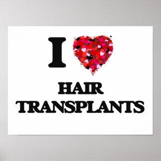 Amo trasplantes del pelo póster
