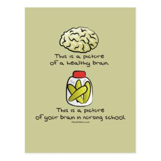 Aquí está su cerebro en escuela de enfermería postales