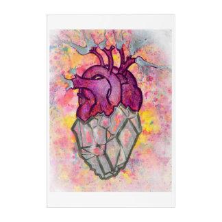 Arte cardiaco de la pared del corazón