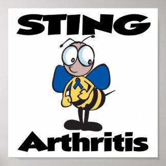 Artritis de STING Impresiones