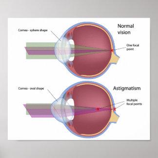 Astigmatismo, un poster común del defecto del ojo