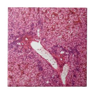Azulejo Células de hígado humanas con el cáncer debajo del