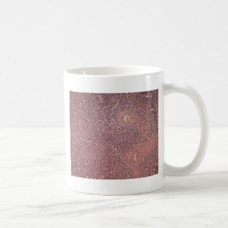 Bazo humano con leucemia mielógena crónica taza de café