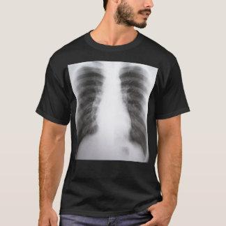 Camisa de la radiografía