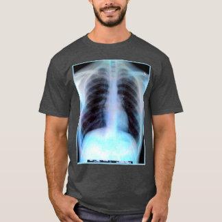 Camisa de la radiografía de Ribcage