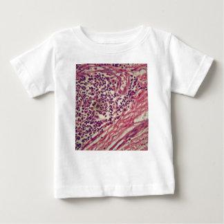 Camiseta De Bebé Células cancerosas del estómago debajo del