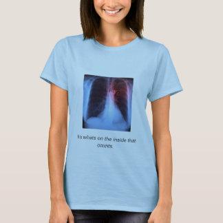 Camiseta el corazón del pecho-x-rayo, RT (r), es en cuál