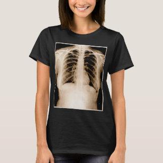 Camiseta Radiografía