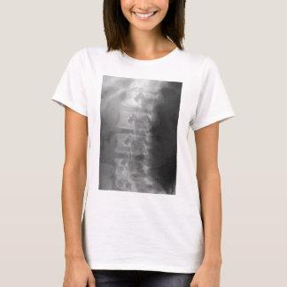 Camiseta síndrome del perro del escocés