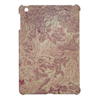 Cáncer de pecho debajo del microscopio