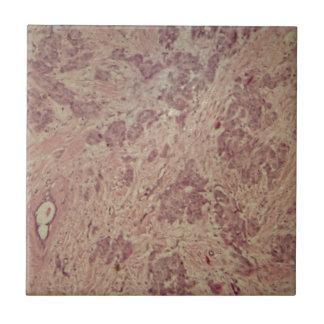 Cáncer de pecho debajo del microscopio azulejo