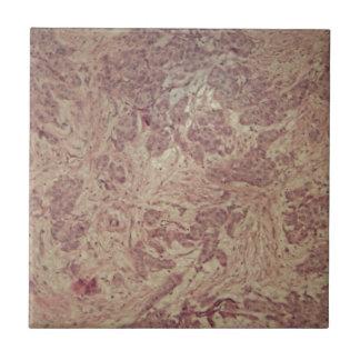 Cáncer de pecho debajo del microscopio azulejo de cerámica