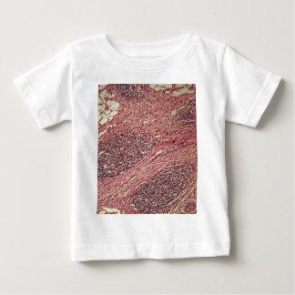 Células cancerosas del estómago debajo del camiseta de bebé