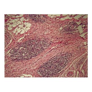 Células cancerosas del estómago debajo del postal