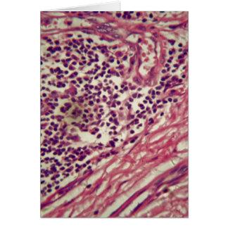 Células cancerosas del estómago debajo del tarjeta de felicitación