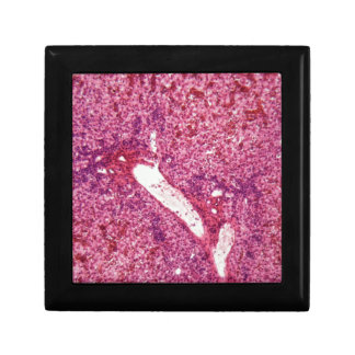 Células de hígado humanas con el cáncer debajo del caja de regalo