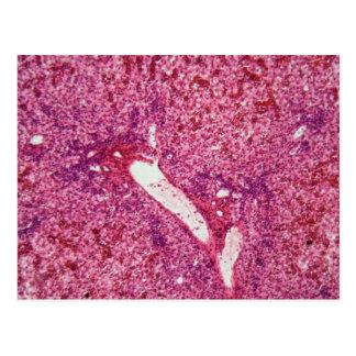Células de hígado humanas con el cáncer debajo del postal