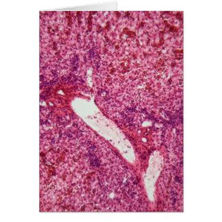 Células de hígado humanas con el cáncer debajo del tarjeta de felicitación
