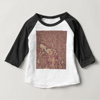 Células de la glándula tiroides con el cáncer camiseta de bebé
