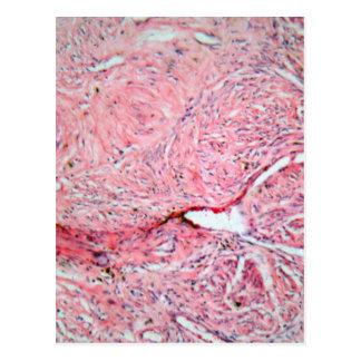 Células del tejido de una cerviz humana con el postal