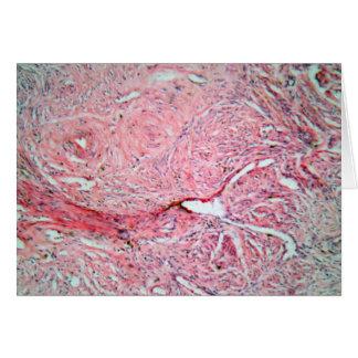 Células del tejido de una cerviz humana con el tarjeta de felicitación