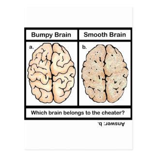 Cerebro de engaño postales