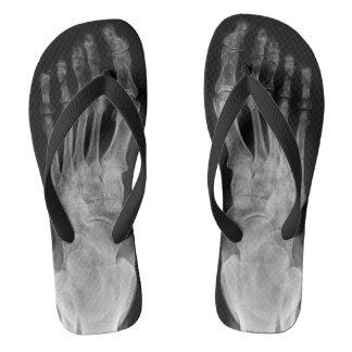Chanclas Los pies esqueléticos de la anatomía del rayo X