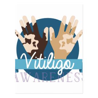 Conciencia de Vitiligo Postal