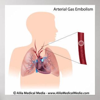 Diagrama arterial de la embolia de gas póster
