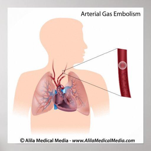 Diagrama arterial de la embolia de gas posters