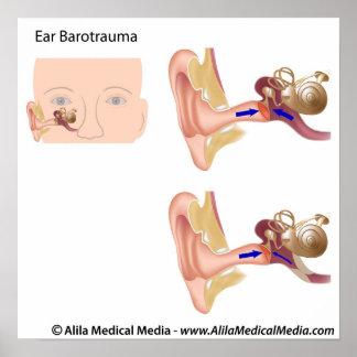Diagrama del trauma bárico del oído póster