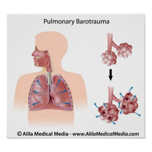 Diagrama pulmonar del trauma bárico impresiones