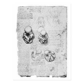 Dibujo de la anatomía del vintage de un feto postal