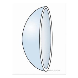 Ejemplo de la lente de contacto suave postal
