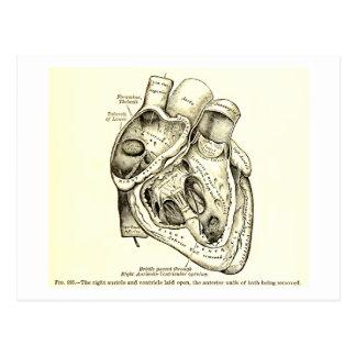 Ejemplo humano del corazón de la anatomía del postal