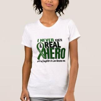 El cáncer de hígado NUNCA CONOCÍA a una nuera del Camiseta