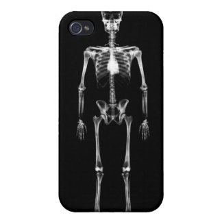 Esqueleto de Vision de la radiografía solo - negro iPhone 4 Cobertura
