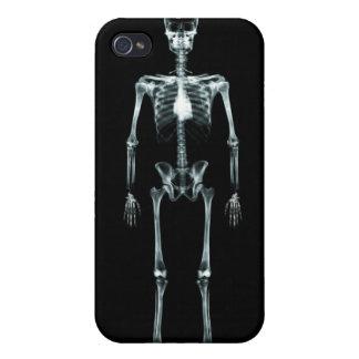 Esqueleto de Vision de la radiografía solo - origi iPhone 4 Protectores