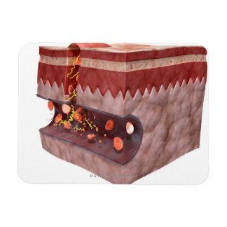 Formación del coágulo de sangre imán flexible
