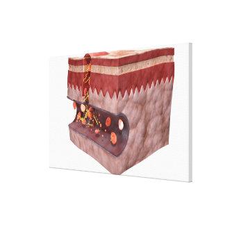 Formación del coágulo de sangre impresiones de lienzo