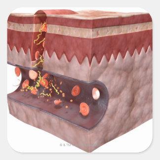 Formación del coágulo de sangre pegatina cuadrada