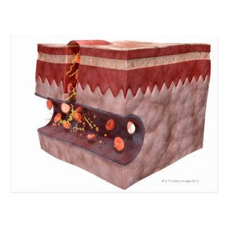 Formación del coágulo de sangre postal