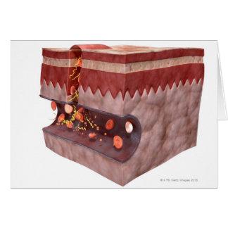 Formación del coágulo de sangre tarjeta de felicitación