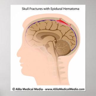 Fracturas del cráneo con el hematoma epidural póster