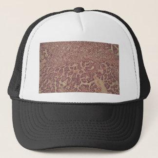 Gorra De Camionero Células de la glándula tiroides con el cáncer