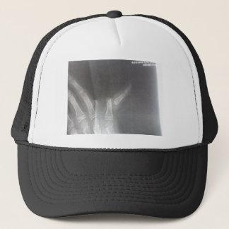 Gorra De Camionero Radiografía
