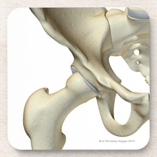 Grieta en hueso de la cadera