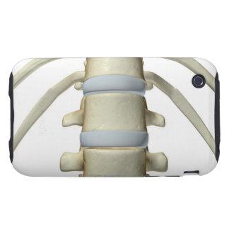 Huesos de la columna vertebral tough iPhone 3 cobertura