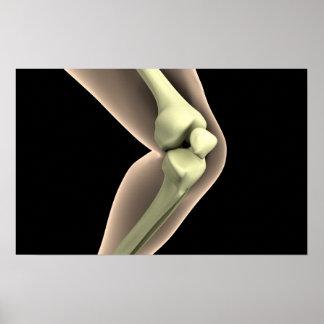 Imagen de la radiografía de la rodilla 2 póster