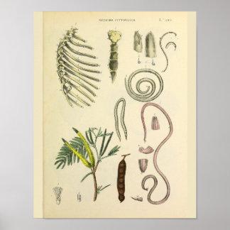 Impresión del arte de la anatomía del esternón de